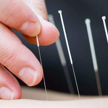 Akupunktur-Nadeln